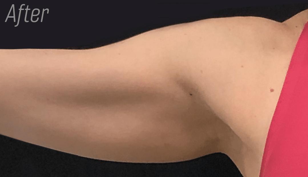 Trusculpt arms after