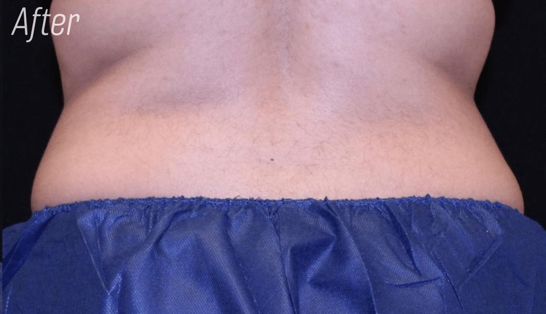 Trusculpt back fat after