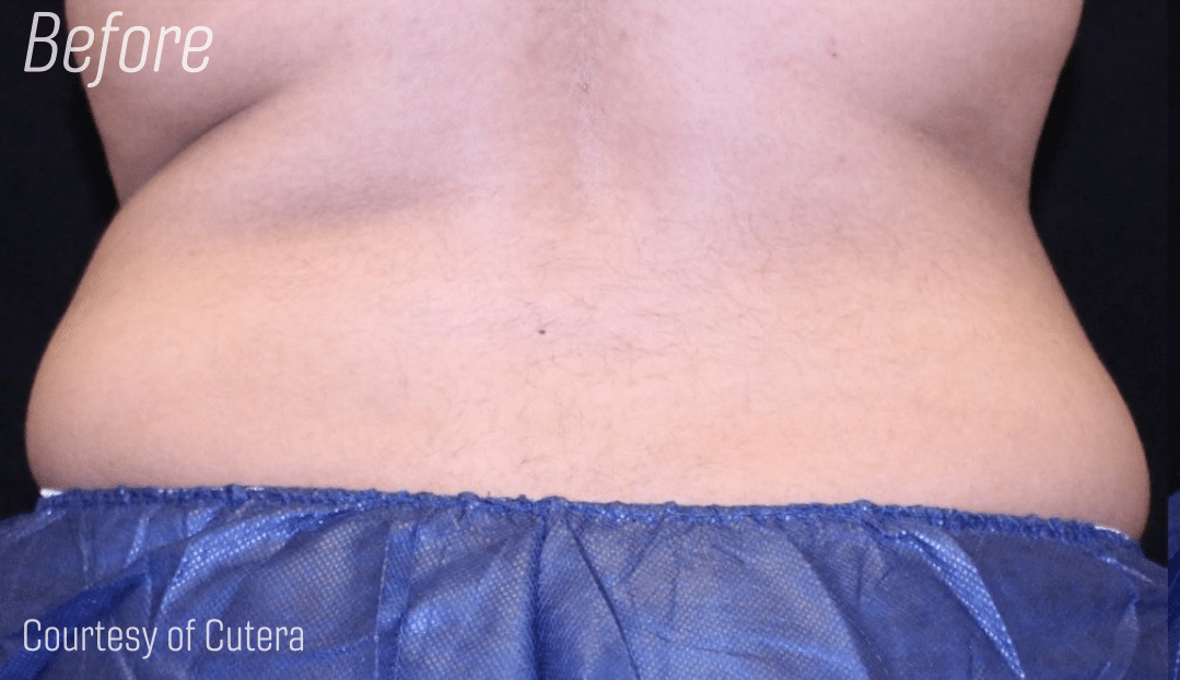 Trusculpt back fat before