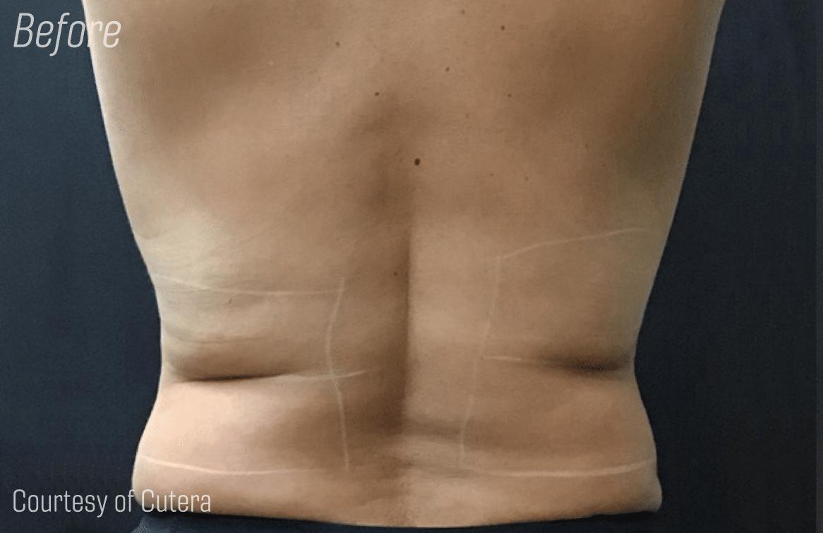 Trusculpt_back_fat_before