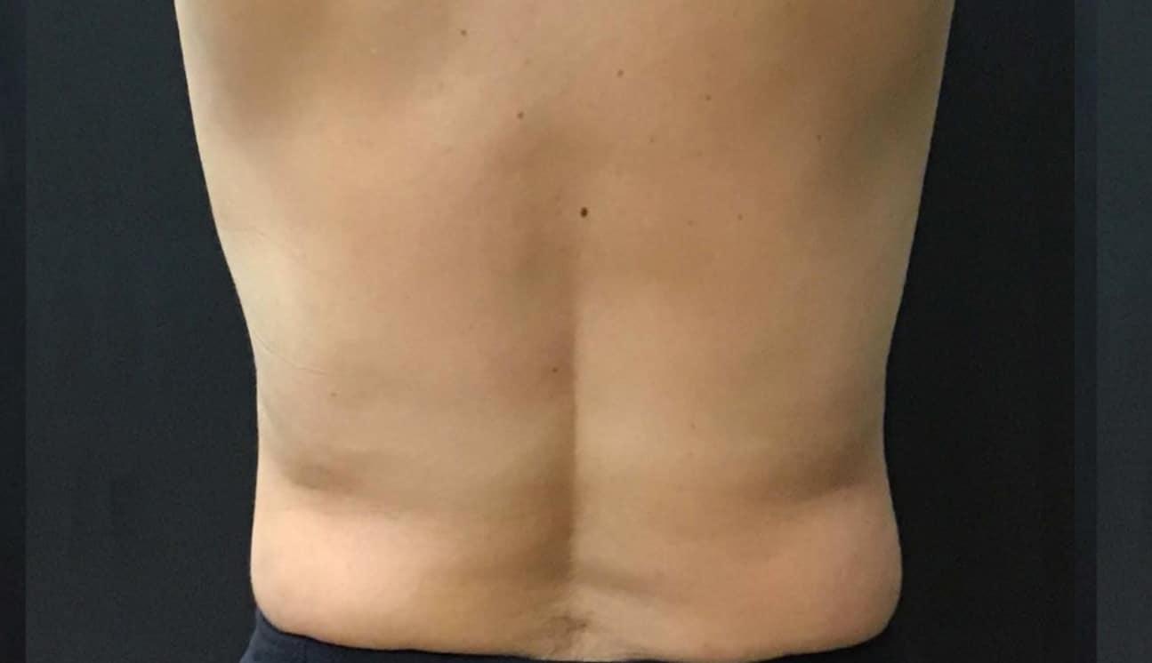 Back fat after trusculpt treatment