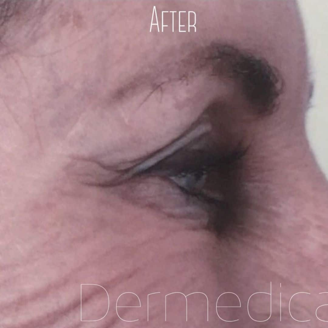 Crows Feet After anti wrinkle injections