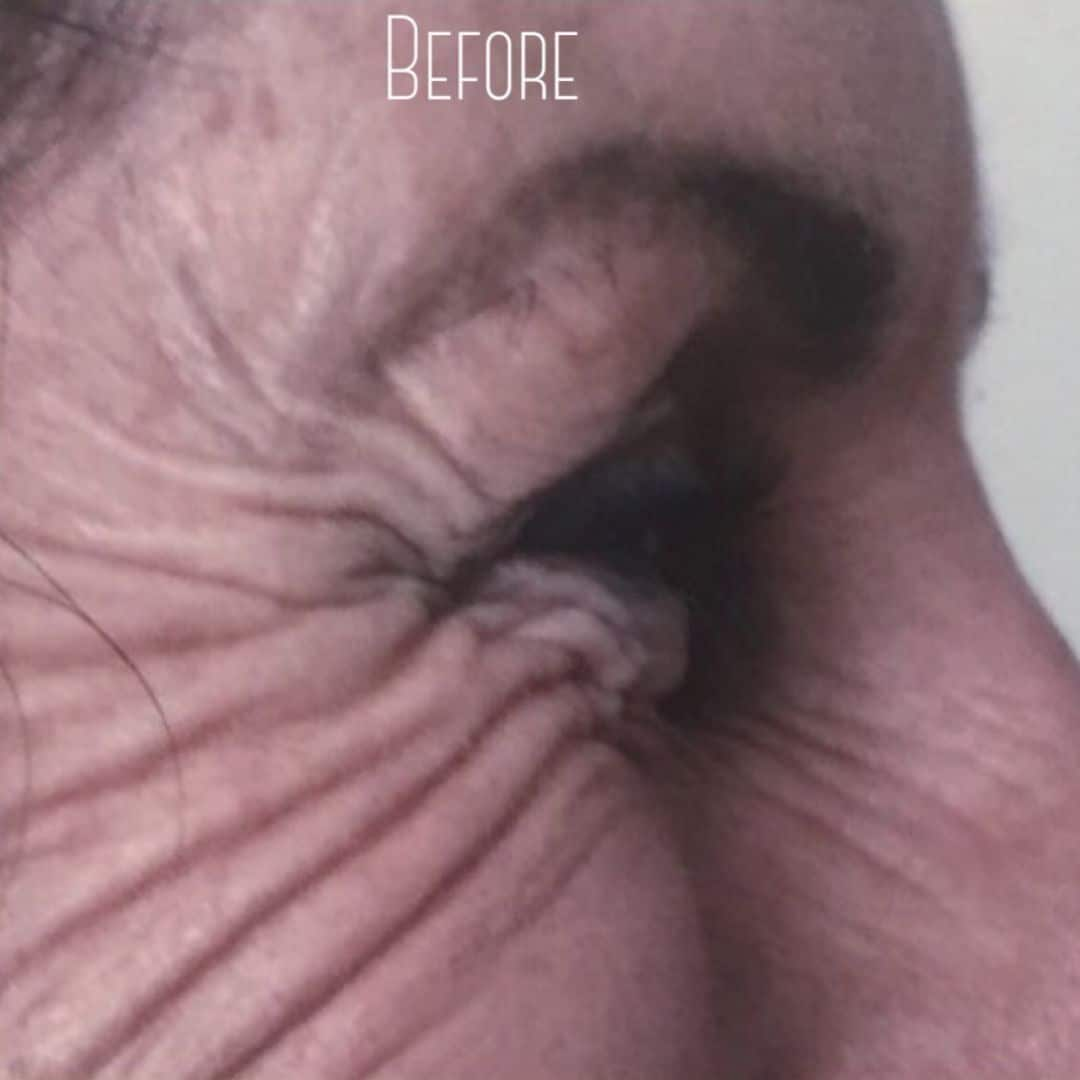Crows Feet before anti wrinkle injections