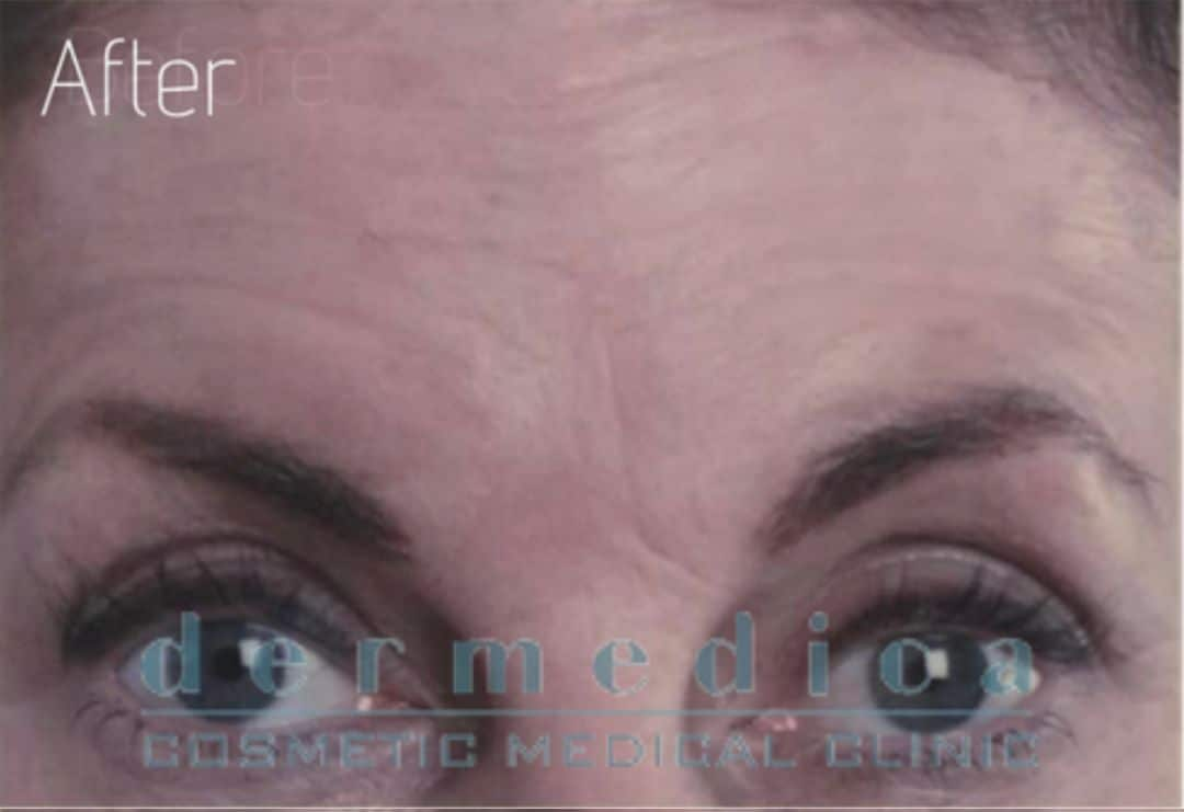 Forehead lines After anti wrinkle injections