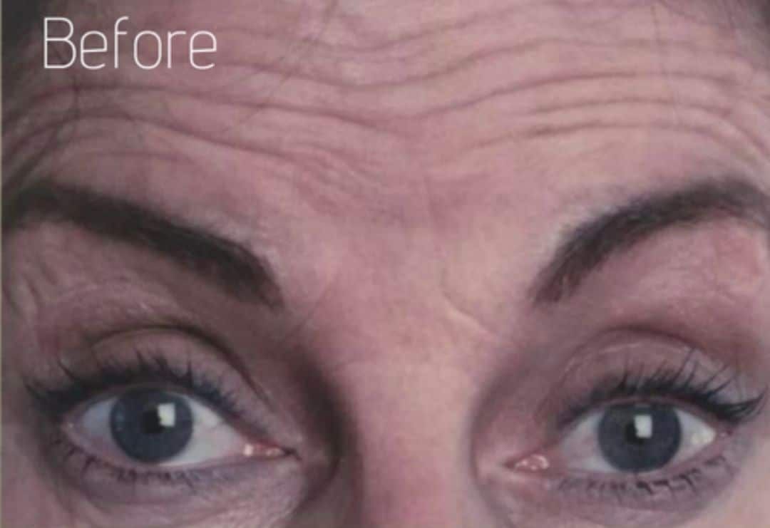 Forehead lines before anti wrinkle injections