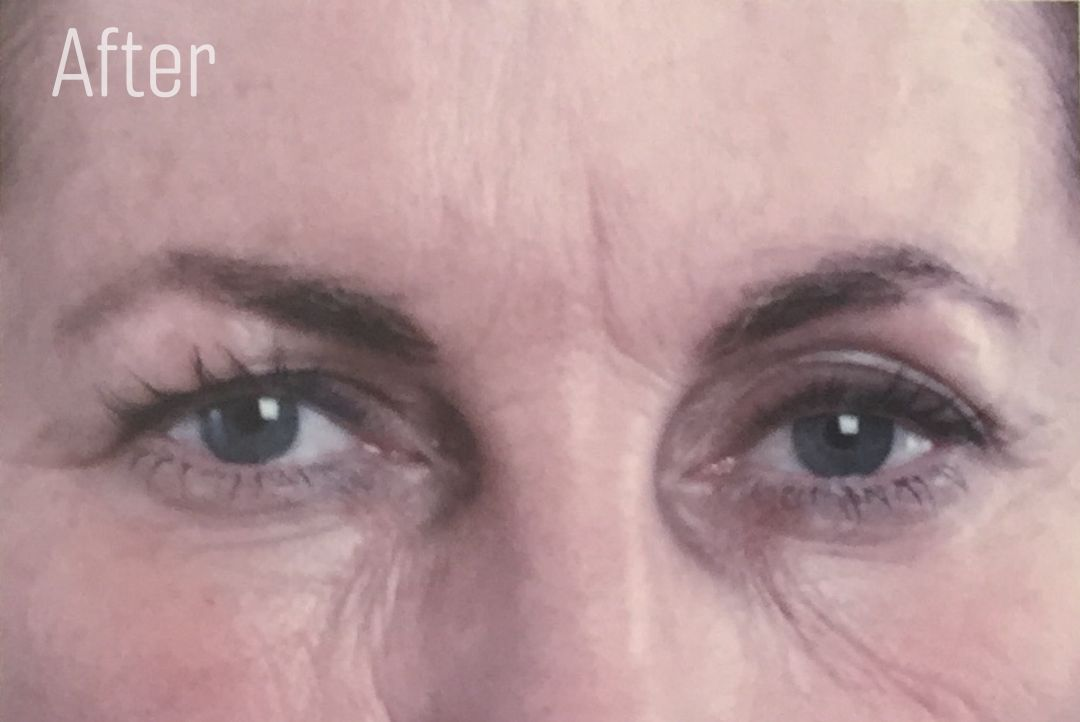 Frown lines After anti wrinkle injections