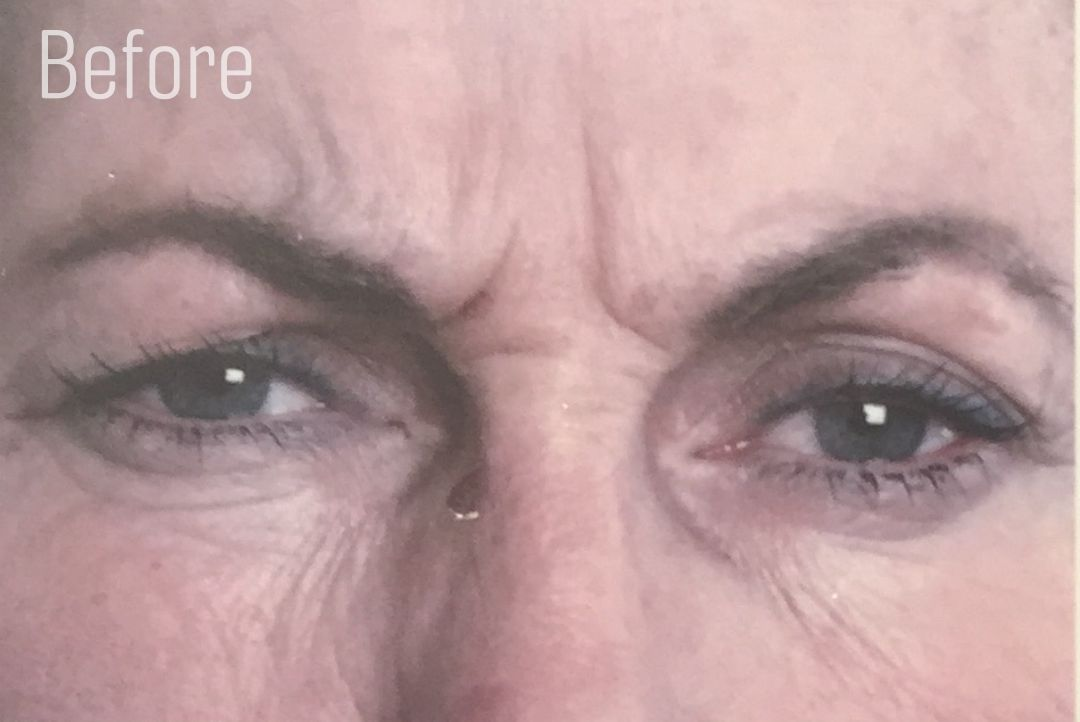 Frown lines before anti wrinkle injections