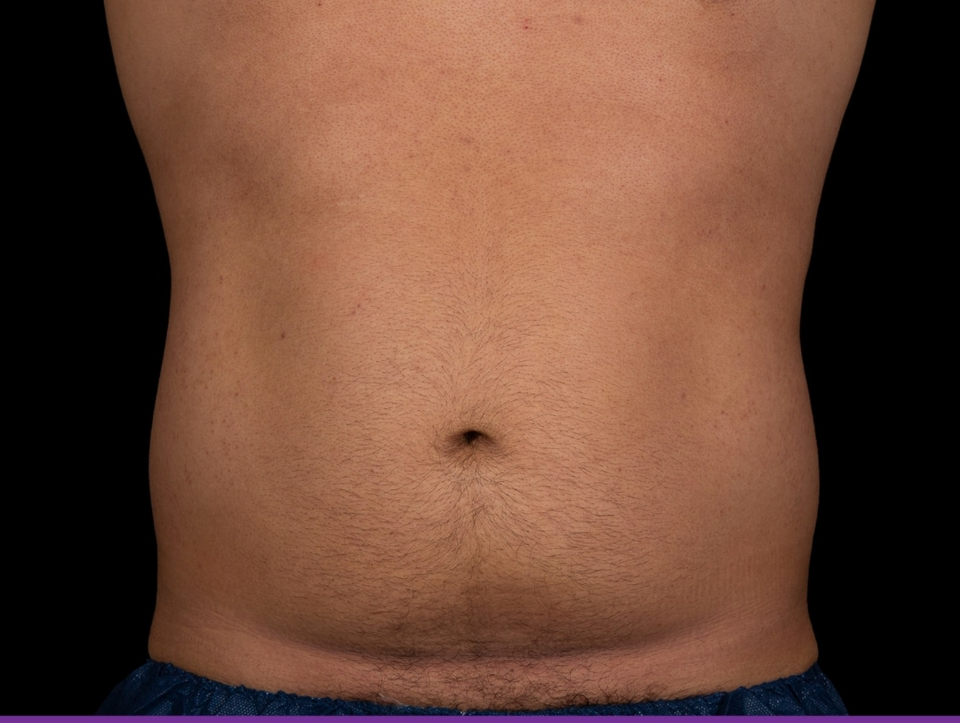Abdominal after