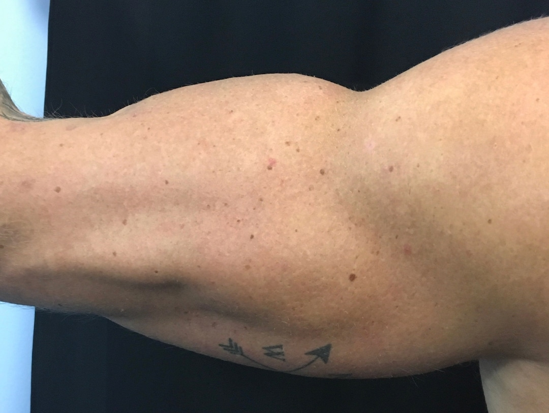 arms after