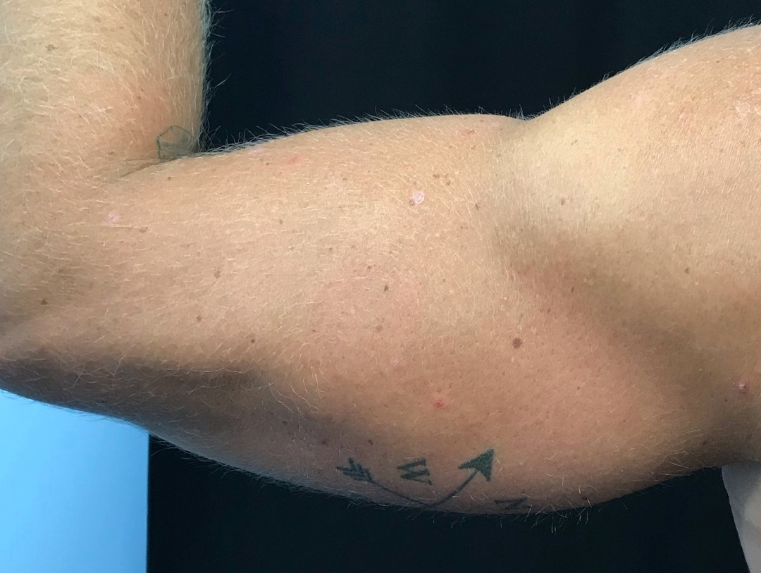 arms before