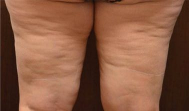 Thighs Before trusculpt id