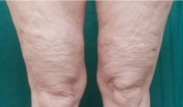Thighs After trusculpt id