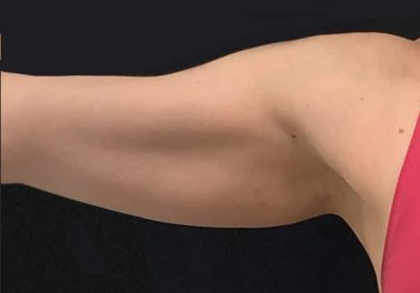 Arms After trusculpt id