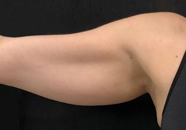Arms Before trusculpt id
