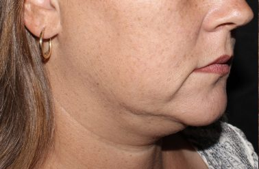Chin Before trusculptid