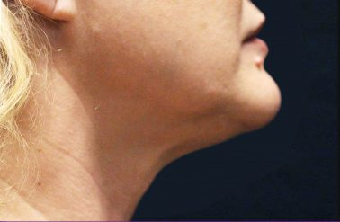 Chin After trusculpt id