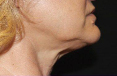 Chin Before trusculpt id